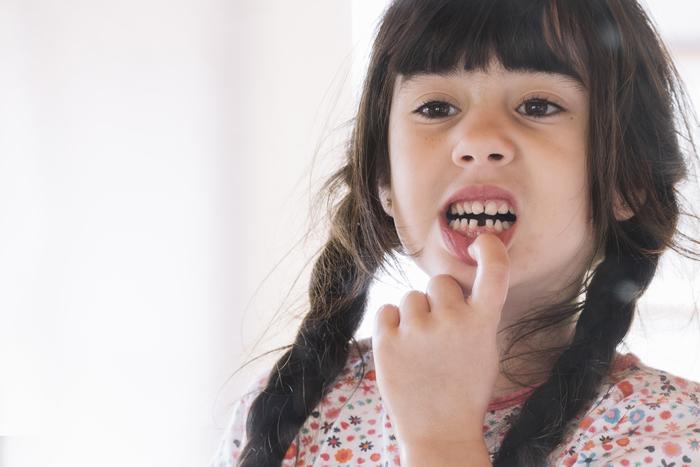 occlusione dentale e cambio dei denti in età dello sviluppo