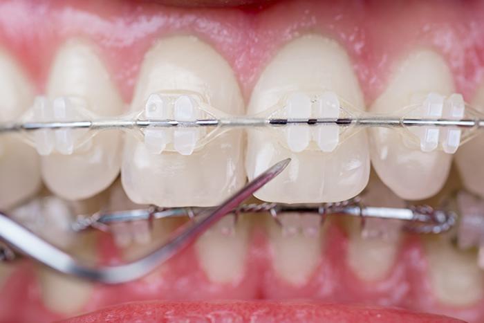ortodonzia integrata per bambini apparecchio fisso ceramica