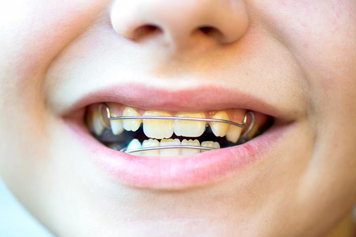 apparecchi ortodontici mobili ortodonzia integrata per bambini
